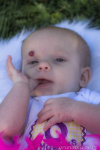 You get the idea. :) Here she is at six months and the hemangioma is bigger still.